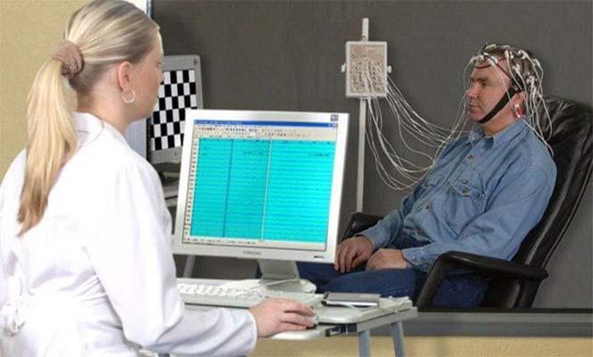 Исследование ЭЭГ